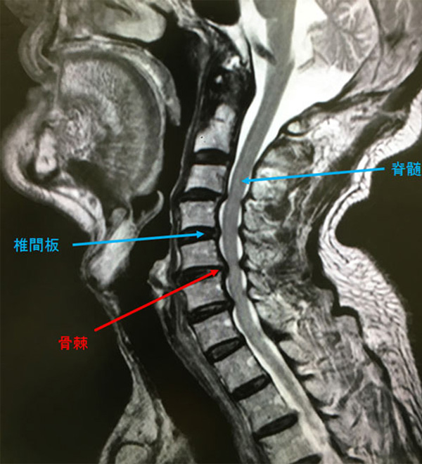 すべり 症 頚椎